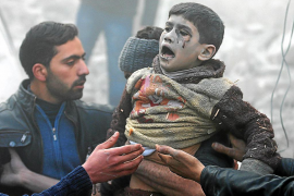 Men help a wounded boy who survived what activists say was an airstrike by forces loyal to Syrian President Bashar al-Assad in t