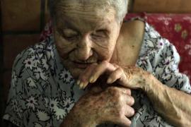 La lepra aún existe en España