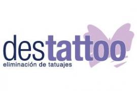 destattoo, eliminación de tatuajes en Palma
