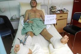 Herido grave en Malasia un turista mallorquín arrollado por un coche que huyó