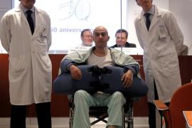 Cirujanos españoles realizan con éxito el segundo trasplante de brazos