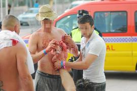Dos hospitalizados tras una batalla campal entre hooligans en Calvià
