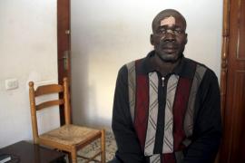 Un senegalés es agredido por dos individuos al tratar de evitar una pelea en Palma