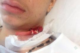 Rompen la mandíbula a un joven a la salida de una discoteca de Cala Millor