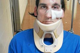 Detenidas dos jóvenes tras dar una paliza a un discapacitado en Palma para robarle