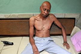 Fariñas abandona la huelga de hambre y sed tras el compromiso de Castro de liberar a 52 presos
