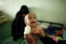 La desnutrición mata a 8.500 niños cada día