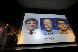 Llevan a cabo en Nueva York el trasplante de cara más complejo hasta la fecha