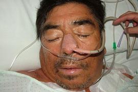 La Policía pide colaboración ciudadana para identificar a un hombre en coma