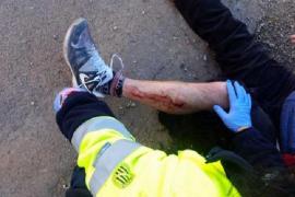 Herido un vecino de Llucmajor tras ser atacado por un perro