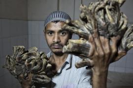 El 'hombre árbol' de Bangladesh, tras ser operado, quiere 'volver a trabajar'