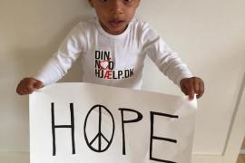 Hope, el «niño brujo», se recupera de forma espectacular