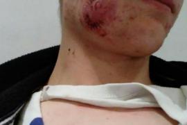 Un menor recibe una paliza al intentar detener una agresión machista