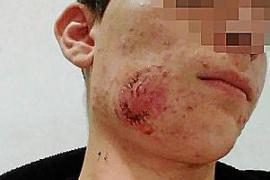 Pasa a disposición judicial el joven que agredió a un menor en el tren