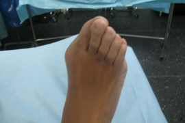 Una operación de juanetes causa incontinencia fecal y limitación sexual a una mujer