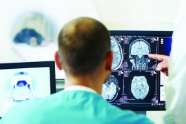 Los usuarios del IB-Salut esperan más de tres meses para pruebas radiológicas