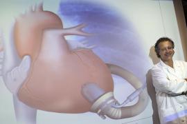 Implantado en Roma el primer corazón artificial de manera permanente