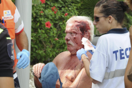 Herido grave un alemán al volcar con  una silla de ruedas eléctrica en Peguera