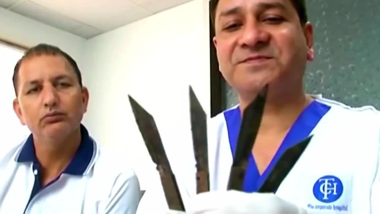 Extraen 40 cuchillos del estómago de un hombre adicto al metal