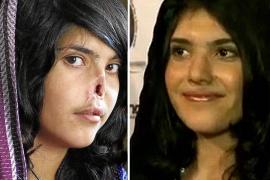 La joven afgana mutilada por su marido recupera su rostro