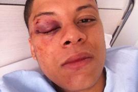 Condenados tres hombres por agredir a un joven rapero en la Platja de Palma