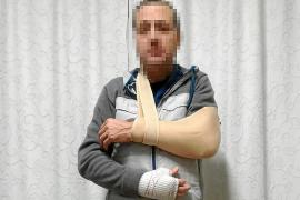 La policía investiga una nueva agresión a un vigilante de seguridad en Palma