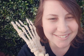 Kristi Loyall, la joven que se fotografía con los huesos de su pie amputado