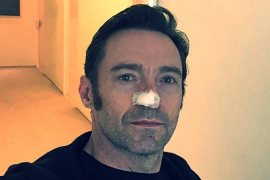 El actor Hugh Jackman ha sido operado por sexta vez de cáncer de piel