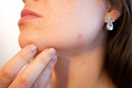 Unos científicos de California crean una vacuna contra el acné