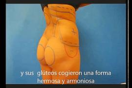 El doctor de la liposucción mortal se anunciaba en webs de descuentos