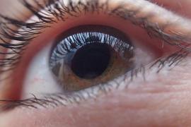 El perdón de una madre a su hijo tras quedarse ciega de un ojo por una paliza