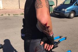 Un ciclista herido: «Ni se paró a ver si me había matado»