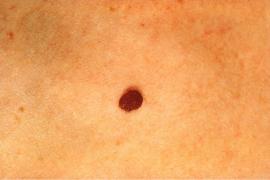 Cada año aumenta un 10 % la incidencia del melanoma en España