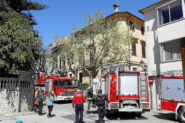 Fallece el hombre que sufrió graves quemaduras en Esporles