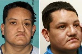 Reconstruyen por primera vez gran parte del rostro de un hombre con cerámica