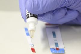 La prueba del SIDA estará disponible en farmacias sin prescripción médica