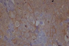 Investigadores españoles identifican una nueva diana terapéutica para combatir la metástasis en cáncer de ovario