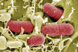 Alemania culpa a los pepinos españoles de la infección que ha causado tres muertes