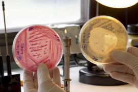 Alemania alega que la infección de 'E. coli' ha sido por «mala suerte»