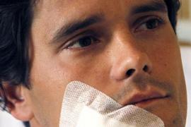 Abellán se recupera de la cornada sufrida en la cara