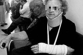 Condenada una mujer de 74 años por morder y golpear a tres guardias civiles en Pollença