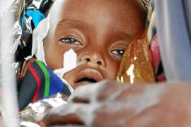 Una epidemia de cólera agrava aún más la crisis de la hambruna en Somalia