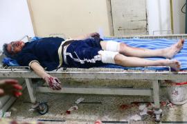 Al menos 66 muertos por ataques aéreos y de artillería cerca de Damasco
