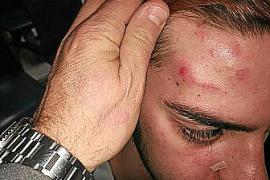 Un joven denuncia en Palma una agresión homófoba y por hablar en catalán