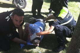 Hospitalizado un hombre de 71 años tras recibir una paliza mientras lo atracaban en es Rafal