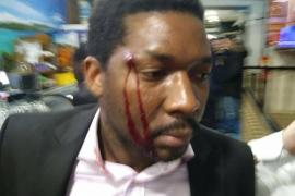 Detenida una mujer por tirar una botella al actor Marius Makon al grito de «no quiero negros en el local»