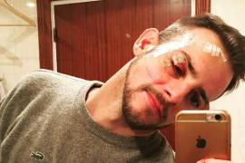 Un año y medio de prisión al joven que agredió al 'extriunfito' Álex Casademunt en una discoteca