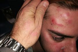 Los presuntos autores de una agresión y robo a una pareja homosexual en Palma son menores
