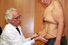 Operan al que fue el hombre más obeso de España para quitarle 20 kilos de piel abdominal