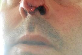 'Bote' dice que fue Diego Romero quien «vino a por mí para darme un cabezazo»